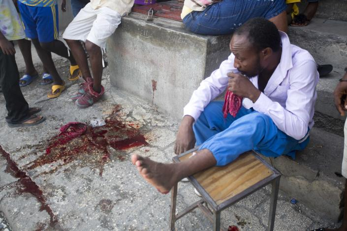 A man who was helping to create a roadblock puts his leg up after he was shot in the foot by shooters on a moving motorcycle, who bystanders allege were government supporters, outside his home during anti-government protests and strike in Port-au-Prince, Haiti, Wednesday, Nov. 21, 2018. Demonstrators have demanded that the president resign for not investigating allegations of corruption in the previous government over a Venezuelan subsidized energy program, Petrocaribe. (AP Photo/Dieu Nalio Chery)