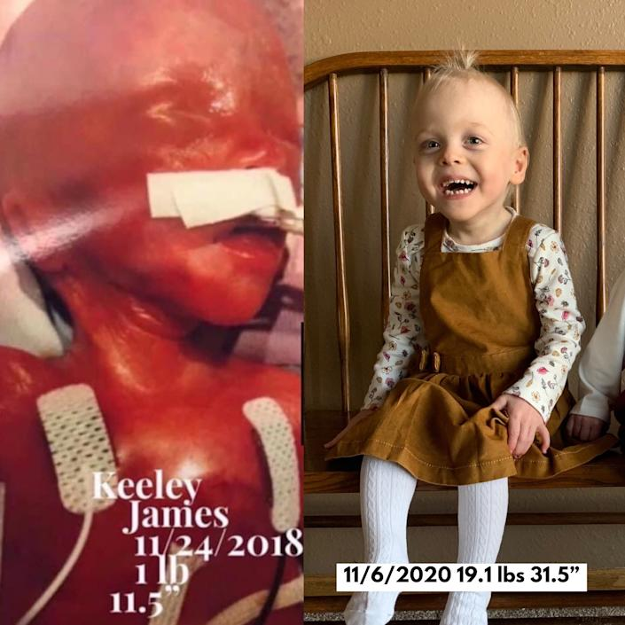 Keeley Ewoldt, of Dysart, as a newborn weighing just 1 pound. At right she's shown about three weeks before her second birthday.