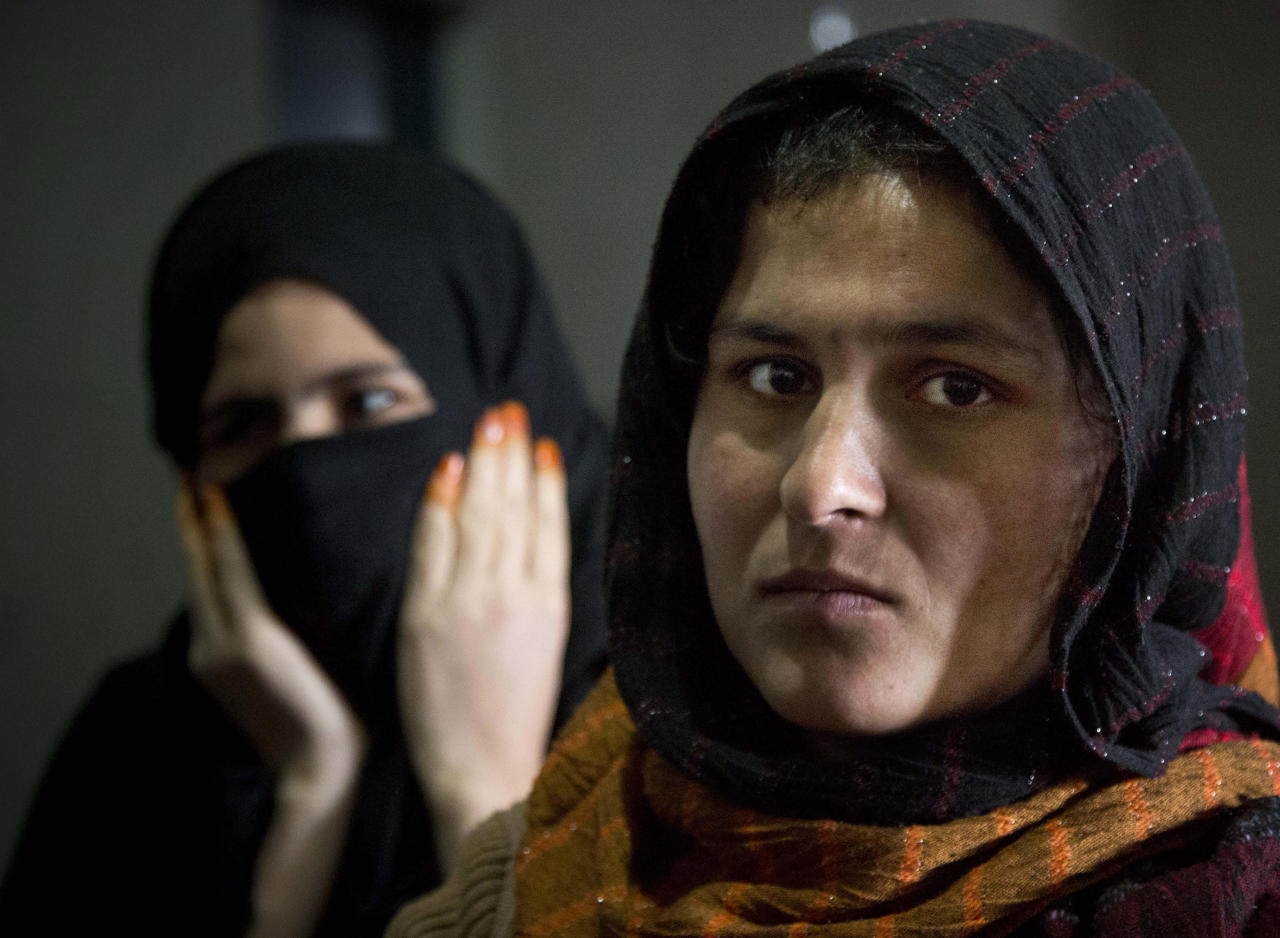 Picture taken March 28, 2013 shows Afghan female prisoner Mariam at Badam Bagh, Afghanistan's central women's prison, in Kabul, Afghanistan. Mariam left her husband and hoped her husband's cousin could help her and give shelter. Instead he raped her. Mariam shot him afterwards in the head and turned the gun on herself. She woke up in the hospital three days later and was brought from there to the prison. (AP Photo/Anja Niedringhaus)