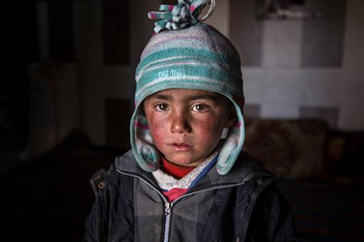 Syrian Children Face Growing Mental Health Crisis, New Report Reveals