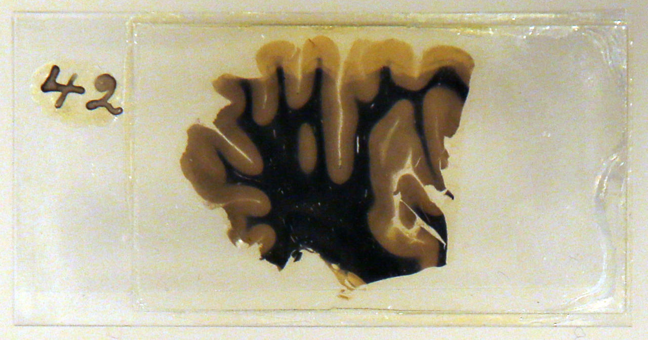 A specimen of Nobel physicist Albert Einstein's brain is seen in a glass slide at an exhibition at the Wellcome Collection in London March 27, 2012. (Chris Helgren/Reuters)