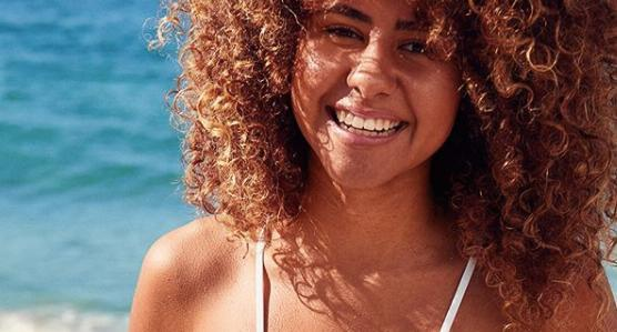 "Aerie model Nia Pettitt gets real about struggling with ""bacne"" and stretch marks. (Photo: Instagram/aerie)"
