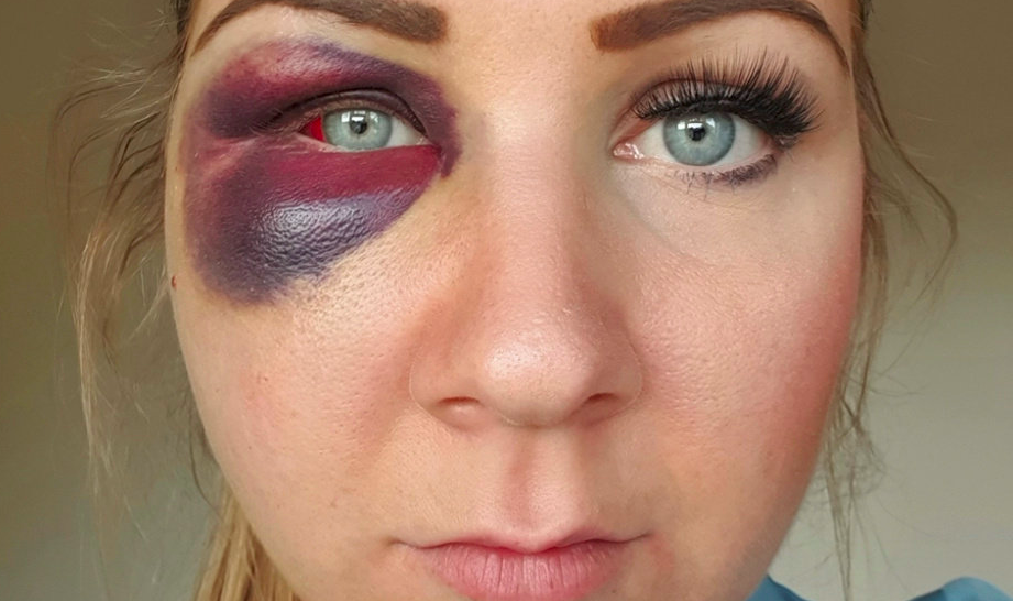 Jennifer Salter was left severely bruised after being attacked on an almost daily basis by ex boyfriend Richard Robson. (SWNS)