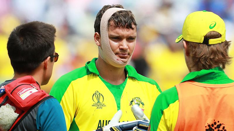 Alex Carey of Australia receives further medical treatment following a cut to the chin from a delivery that struck his helmet from Jofra Archer. (Photo by David Rogers/Getty Images)