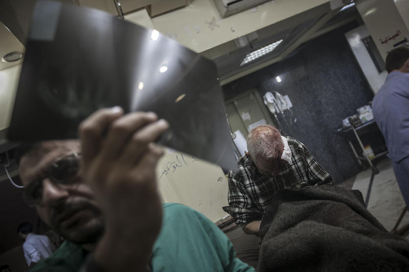 In this Saturday, Oct. 27, 2012 photo, a doctor examines an x-ray while a Syrian elder sits on a hospital trolley suffering partial loss of memory after was shot in the head by a sniper in Aleppo, Syria. (AP Photo/Narciso Contreras).