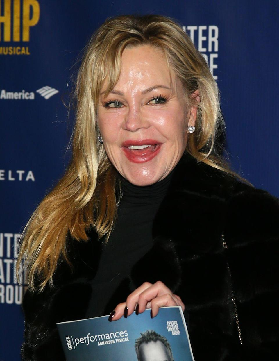 "<p>Melanie Griffith didn't know how addicted she had become to plastic surgery until ""people started saying, 'Oh my God, what has she done?!'"" <a href=""https://www.vanityfair.com/style/2017/04/melanie-griffith-plastic-surgery-addiction-warren-beatty"" rel=""nofollow noopener"" target=""_blank"" data-ylk=""slk:she said"" class=""link rapid-noclick-resp"">she said</a>. ""I was so hurt I went to a different doctor and he started dissolving all of this shit that this other woman doctor had put in. Hopefully, I look more normal now.""</p>"