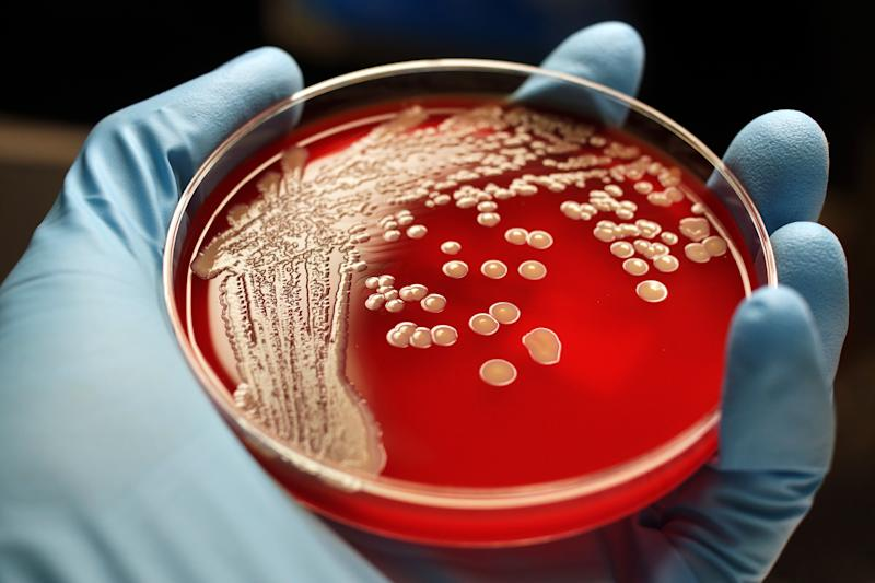 Human hand holding MRSA colonies on blood agar plate.