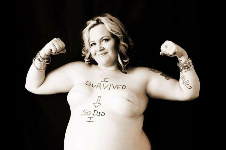 Breast cancer mastectomy pictures