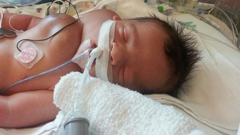 Boy Thriving After Surgery in Womb