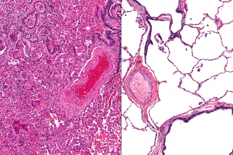 The patient's lung tissue under the microscope (left) and healthy lung tissue under the microscope (right): Kirk Jones, UCSF