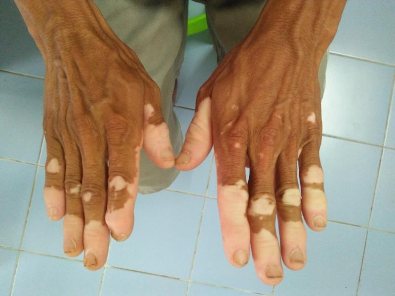 Male hand Skin disorder pepper appearance from vitiligo,scleroderma and raynaud, medical concept autoimmune disease