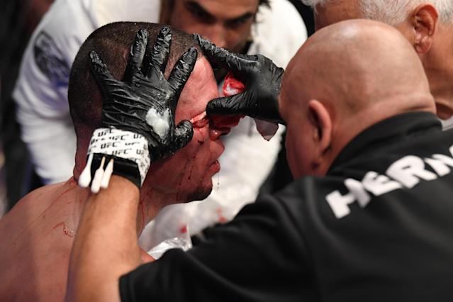 NEW YORK, NEW YORK - NOVEMBER 02: A cutman tends to the cut of Nate Diaz between rounds of his welterweight bout against Jorge Masvidal for the BMF title during the UFC 244 event at Madison Square Garden on November 02, 2019 in New York City. (Photo by Josh Hedges/Zuffa LLC via Getty Images)