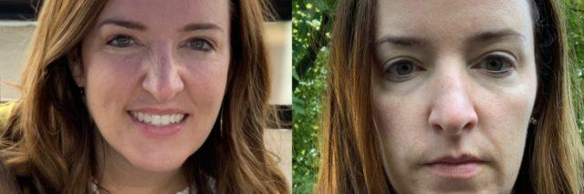 The two photos show the contrast of the author looking happy and healthy on the left, and grieving and tired on the right.