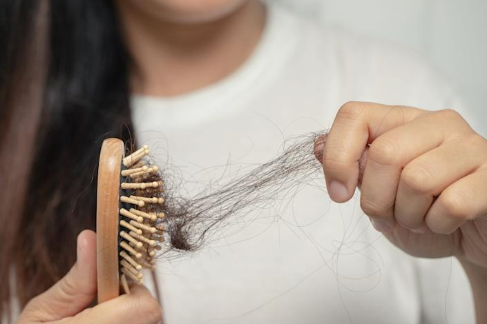 "Even if you hair is falling out, it might not actually be considered ""hair loss."" (Photo: Kamonwan Wankaew via Getty Images)"