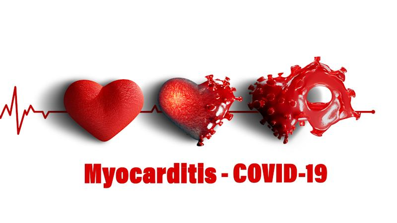 COVID-19 attacks the heart muscle causing its inflammation. This can lead to a heart attack. Source: Getty