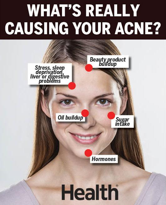 a definition and causes of acne Acne - learn about the causes, symptoms, diagnosis & treatment from the msd  manuals - medical consumer version.