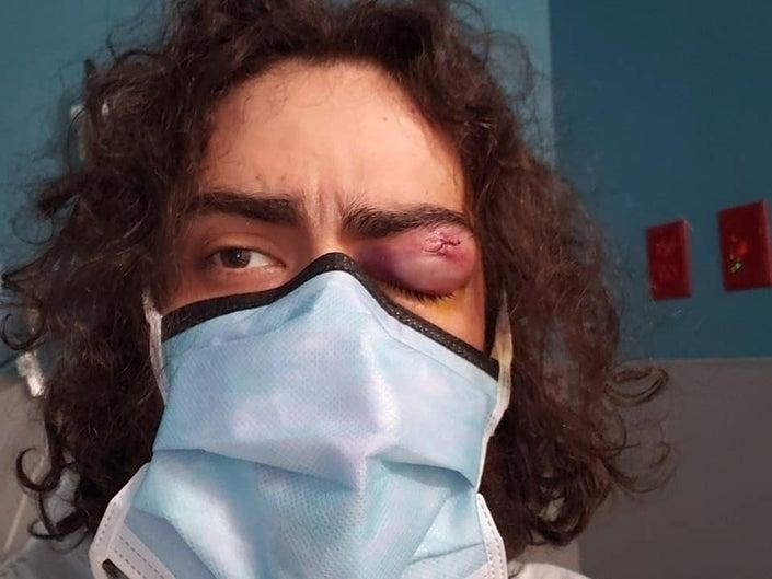 Matthew Leo Cima was shot in the eye with a pepper bullet as he was protesting Sunday night at the White House.