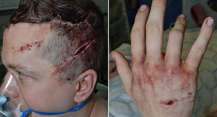 The machete wounds on PC Outten (PA)