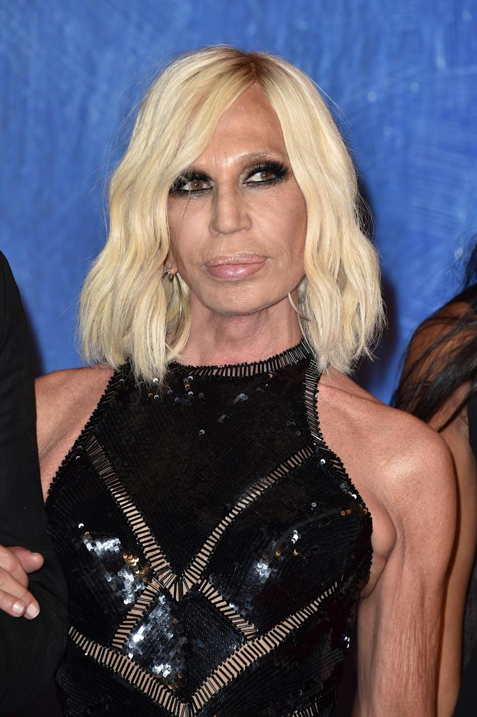 <p>Her most recent public appearance showed a shiny face (which could be the sign of a Botox overload). Other than that, Donatella's lips appear to be reducing to normal size and her overall face looks more natural. <i>[Photo: Getty]</i> </p>