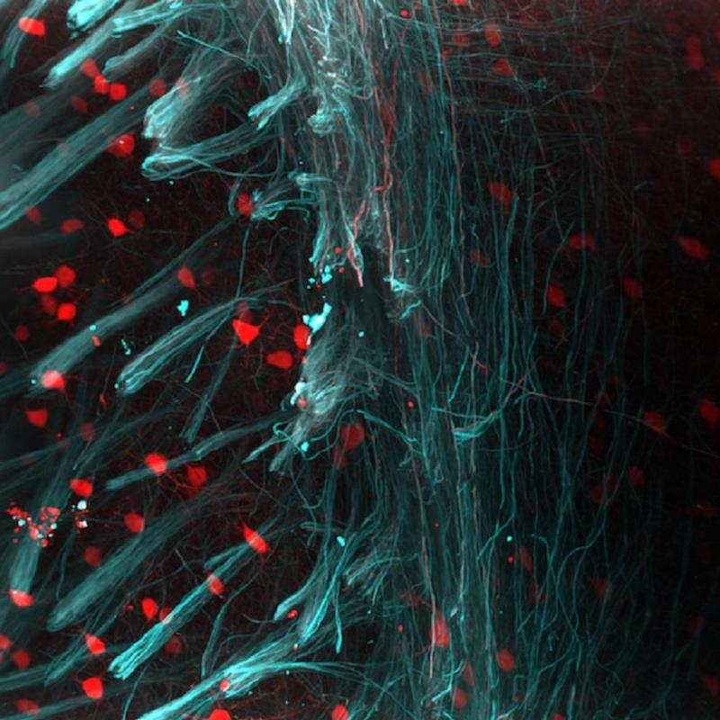 neurons brain images lasers