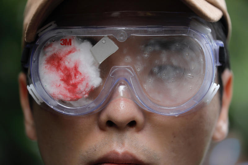 THIS ADDS TO CLARIFY A WOMAN'S EYE'S CONDITION - A pro-democracy protester with his eye covered in red-eyepatch, symbolizing a women reported to have had an eye ruptured by a beanbag round fired by police during clashes, participates in a march organized by teachers in Hong Kong Saturday, Aug. 17, 2019. Members of China's paramilitary People's Armed Police marched and practiced crowd control tactics at a sports complex in Shenzhen across from Hong Kong in what some interpreted as a threat against pro-democracy protesters in the semi-autonomous territory. (AP Photo/Vincent Yu)