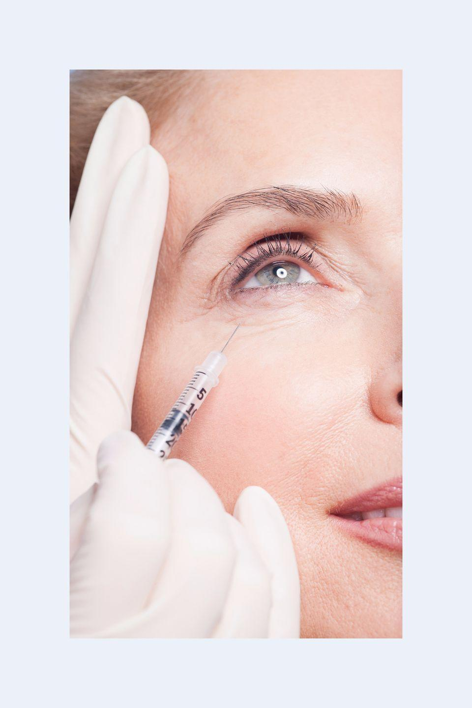 """<p>""""Filler under the eyes <strong>camouflages dark circles and under eye hollows </strong>that can make you appear tired. Restylane gives immediate, painless results that can last up to a year.<strong> You'll leave the same day looking like you got 10 hours of sleep.</strong>"""" —<em>Dr. Paul Jarrod Frank, celebrity dermatologist and founder of PFRANKMD</em></p>"""