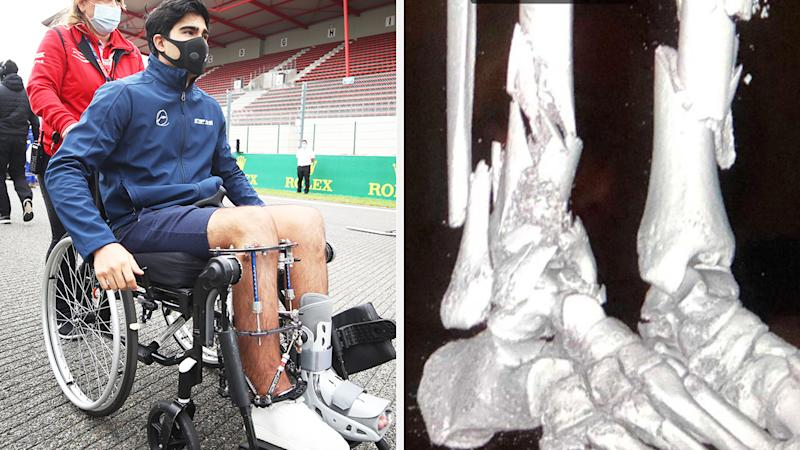 A 50-50 split image shows Juan Manuel Correa on the left in a wheelchair, and x-rays showing the damage to his legs on the right.