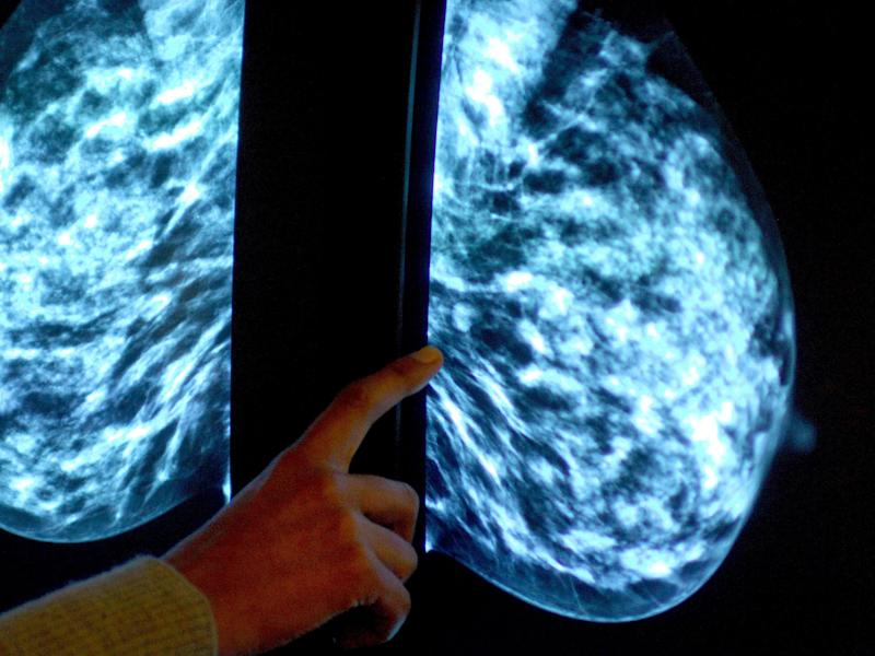Low-protein diet could prevent breast cancer cells resisting treatment, study suggests