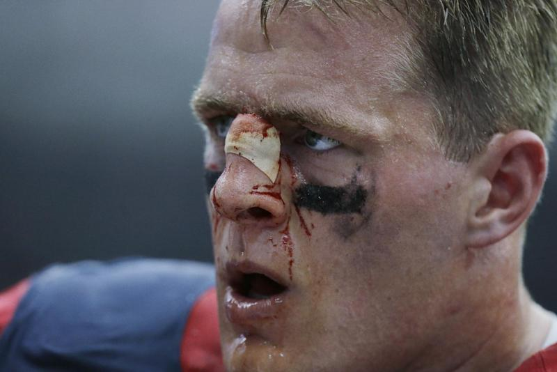 A bloodied Houston Texans' J.J. Watt stands on the sideline during the fourth quarter an NFL football game against the Seattle Seahawks, Sunday, Sept. 29, 2013, in Houston. (AP Photo/Patric Schneider)