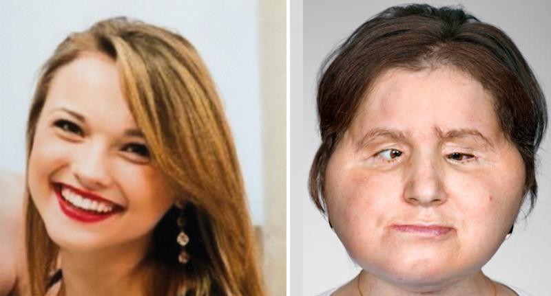 A 21-year-old woman named Katie Stubblefield (pictured left in 2013 and right in 2018) has become the youngest person in the United States to receive a face transplant after the country's first face transplant on Connie Culp in 2008