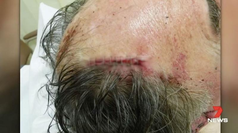 A 71-year-old man ended up in the trauma unit after a vicious bashing. Source: 7 News