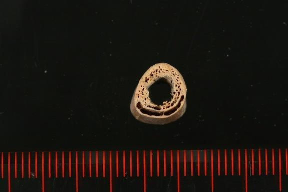 A cross-section of a humerus bone from the 24,000-year-old skeleton found in Siberia. Researchers managed to extract DNA from the bones and trace the ancient individual's genetic lineage.