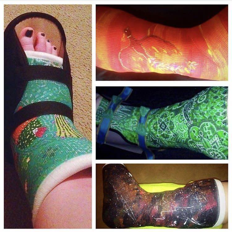 Assortment of casts painted by Katie.