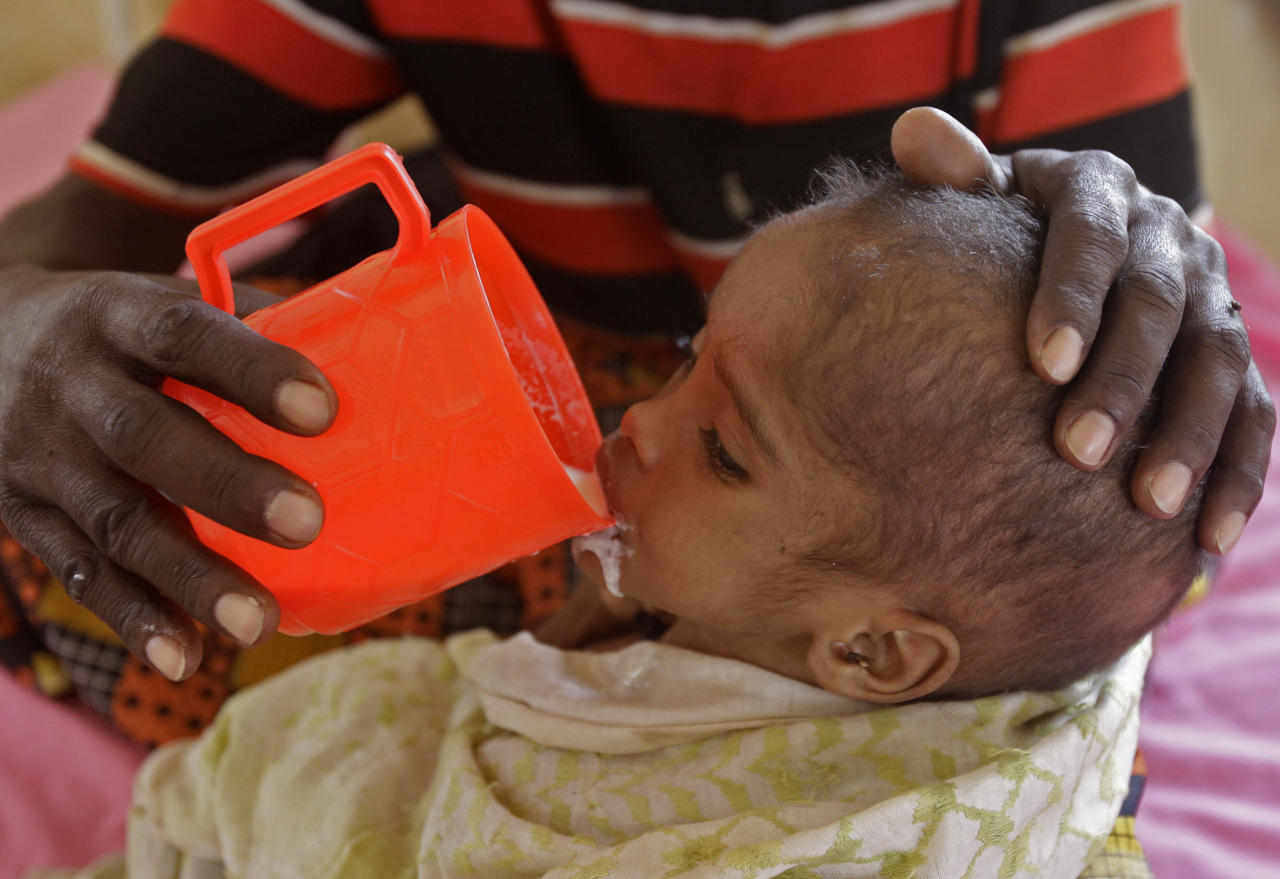 A man feeds his child at a field hospital run by the International Rescue Committee (IRC) in Dadaab, Kenya, Monday, Aug 1, 2011. Dadaab, a camp designed for 90,000 people now houses around 440,000 refugees. Almost all are from war-ravaged Somalia, with some having been here for more than 20 years, when the country first collapsed into anarchy. (AP Photo/Schalk van Zuydam)