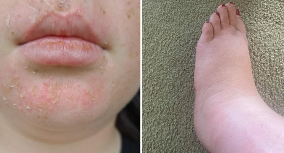 The 10-year-old's face was still burned four days after (left) and her mum's legs were swollen (right). Source: Supplied