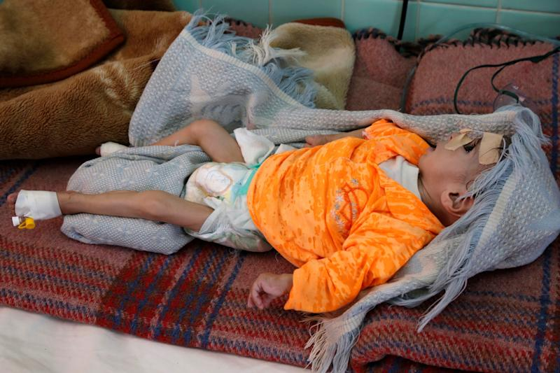 A malnourished infant at a hospital in Sanaa, Yemen, in the fall of 2019. Mass hunger in the country has reduced people's capacity to fight diseases like the novel coronavirus. (Photo: Anadolu Agency via Getty Images)