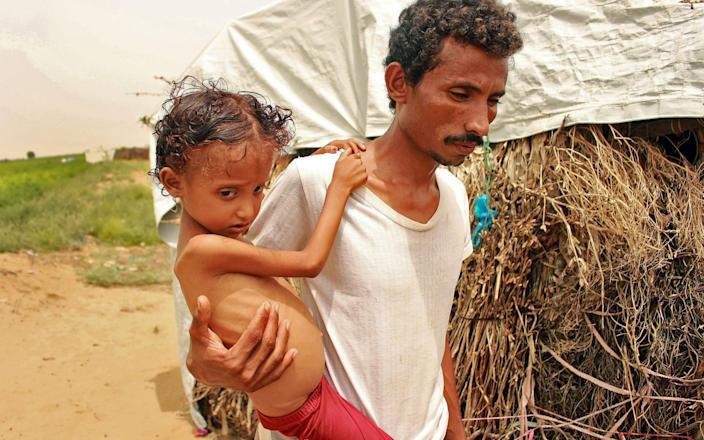 In this file photo taken on September 23, 2020, displaced Yemeni Samar Ali Ahmed, 8-year-old weighing nine and a half kilogrammes suffering from acute malnutrition, is carried by her father in Hajjah Governorate, in northern Yemen. - Nearly 200 charities on November 20, 2020, urged Britain's Prime Minister Boris Johnson to abandon plans to cut Britain's international development budget as it grapples with the economic fallout of the coronavirus pandemic. - AFP