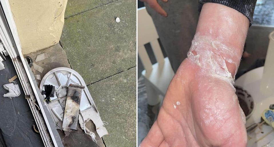 burned items from a house and a man with a burned arm after a wax burner 'exploded' in the house