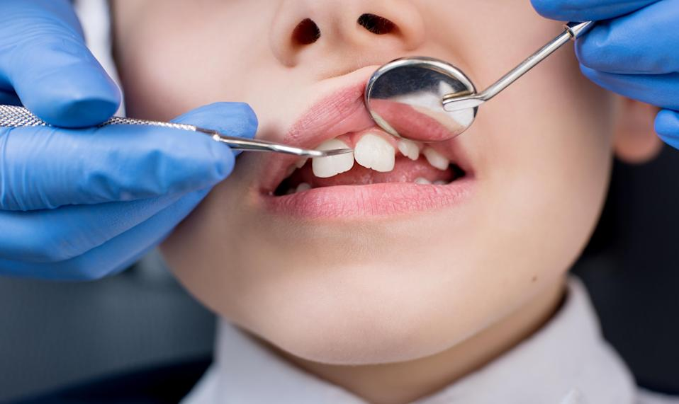 A Pennsylvania dental office allegedly is threatening to report a mother for neglect for not having her kids' cavities filled. (Photo: Getty Images)