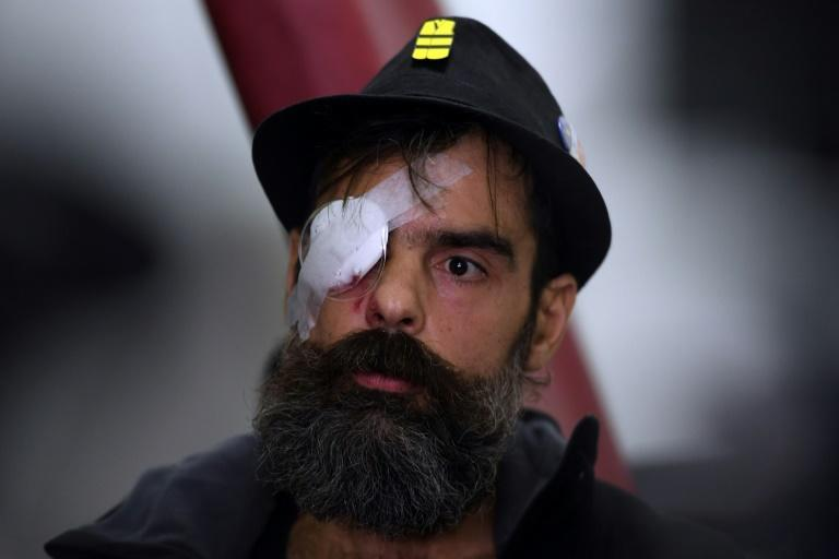 Yellow vest movement leader Jerome Rodrigues arrives to give a press conference at the Cochin hospital in Paris on January 27, 2019, one day after getting wounded in the eye during an anti-government demonstration
