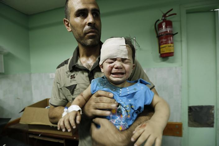 A Palestinian child, wounded in an Israeli strike on a UN school compound in Jabalia refugee camp in Gaza receives treatment at Kamal Adwan hospital in Beit Lahia on July 30, 2014 (AFP Photo/Mohammed Abed)