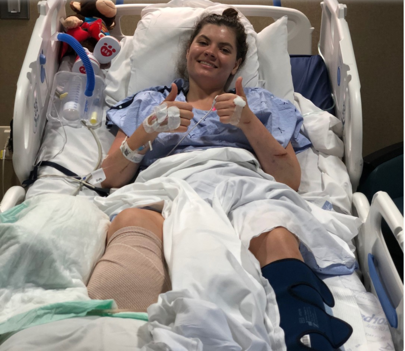 Leslie Burns, a high school English teacher, lost her leg in a boating accident on Lake Mead this week. (Photo Credit: KTNV)