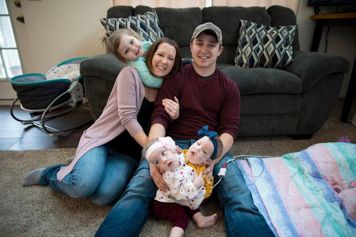 Alyson and Phil Irwin with their conjoined twins Amelia and Sarabeth Irwin at their Petersburg, Michigan home before their separation surgery.