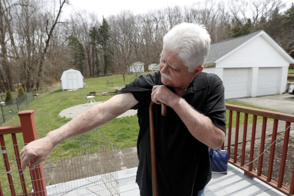 In this April 8, 2019, photo Chuck Pope, who suffers from rheumatoid arthritis, shows the condition of his arms while on the deck at his home in Derry, Pa. Pope, a former machinist, says the disease has caused loss of muscle in his arms. While he was still working, his insurance covered an injected drug that relieves pain and stops irreversible joint damage but retails for over $5,000 a month. Now his Medicare plan doesn't cover the drug, and Pope says his condition is deteriorating without it. Meanwhile, sales of approved, cheaper versions have been blocked. (AP Photo/Keith Srakocic)