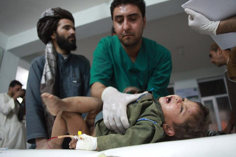 An injured Afghan child is treated at a hospital after a roadside bomb in theObi district of Herat, west of Kabul, Afghanistan, Tuesday, July 9, 2013. A roadside bomb killed 17 civilians, including four children, in western Afghanistan on Tuesday. (AP Photo/Hoshang Hashimi)