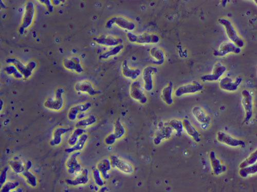 Brain-Eating Amoeba Infects 12-Year-Old Girl