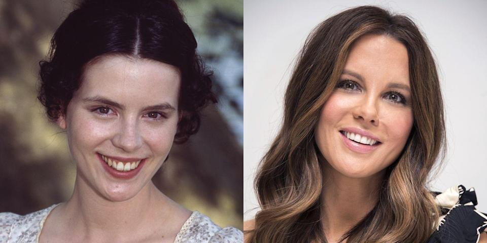 """<p>""""Kate Beckinsale had very long teeth with some enamel discoloration. She appears to have achieved a healthier and whiter smile with the placement of porcelain veneers. By removing a small amount of enamel from the tooth and replacing it with custom-made porcelain veneers, you can create a more balanced smile that blends with the surrounding facial features. There is little to no downtime associated with placement of porcelain veneers, and when maintained properly, they can last 15–20 years.""""</p>"""