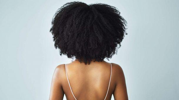 PHOTO: An undated stock photo depicts a young woman with curly hair. (STOCK IMAGE/Getty Images)