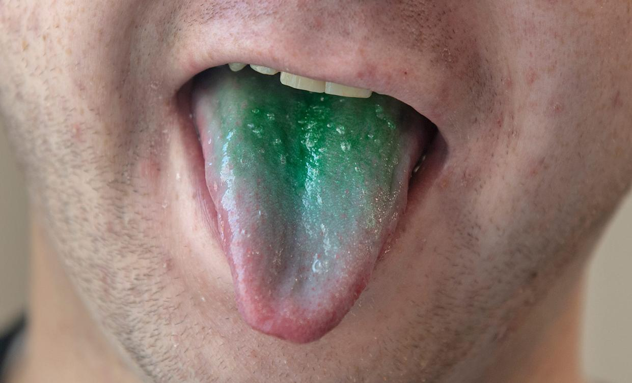 Police officers have alleged in some DUI cases that people who recently smoked marijuana had green tongues. There's no scientific evidence that police cited that shows marijuana causes someone's tongue to turn green.