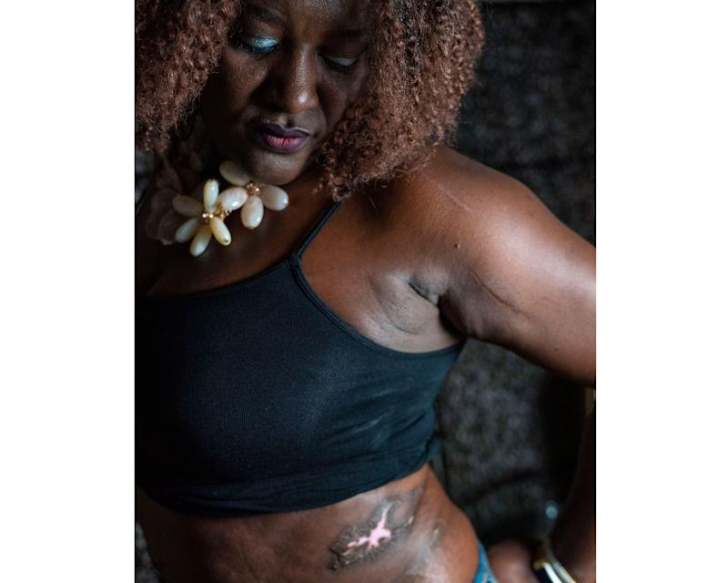 Nicola Mason was left badly scarred during a botched surgery at Spectrum Aesthetics in Miami.
